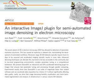 An interactive ImageJ plugin for semi-automated image denoising in electron microscopy